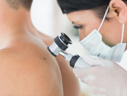 Dermatoskopia- badanie znamion.